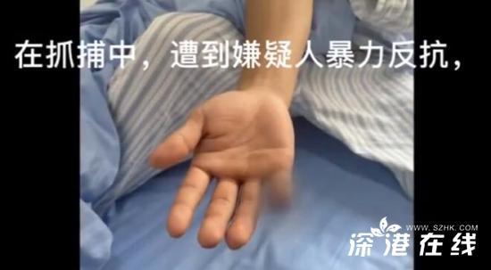 云南辅警抓偷渡蛇头被咬断手指 事情经过是?!