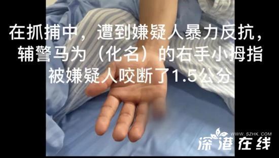 云南辅警抓偷渡蛇头被咬断手指 太心疼了!当时什么情况?